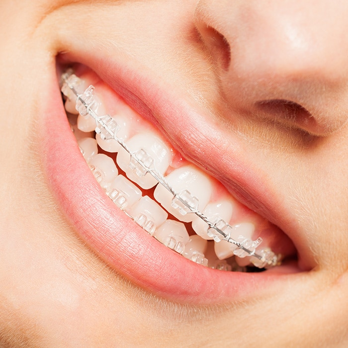 Invisible Aligners Lincoln Park MI & Ceramic Braces Lincoln Park MI